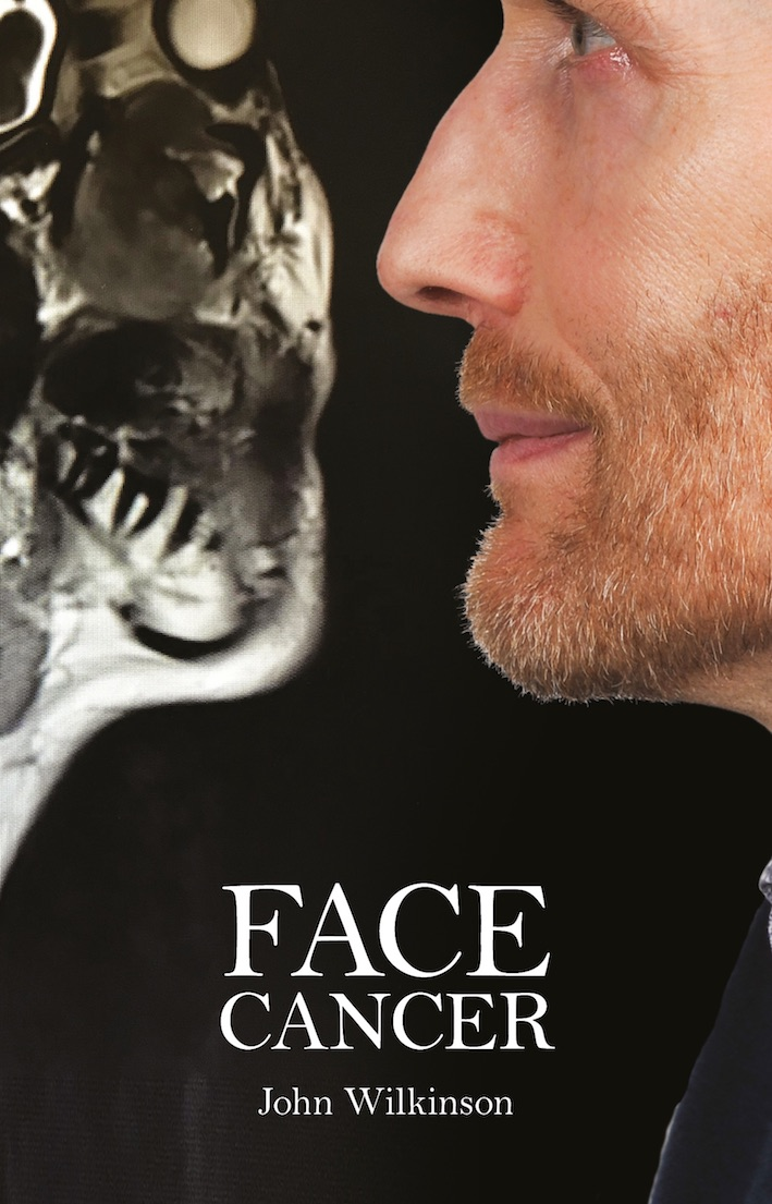 Face Cancer by John Wilkinson